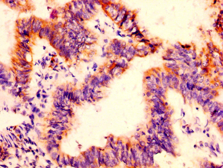 FCGRT Antibody in Immunohistochemistry (Paraffin) (IHC (P))