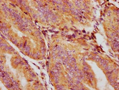 GDF5 Antibody in Immunohistochemistry (Paraffin) (IHC (P))