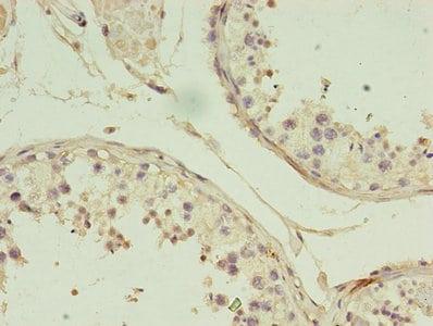 GIF Antibody in Immunohistochemistry (Paraffin) (IHC (P))