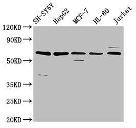 HRG Antibody in Western Blot (WB)