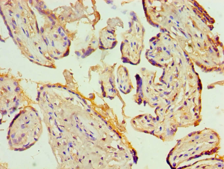 KCNN4 Antibody in Immunohistochemistry (Paraffin) (IHC (P))