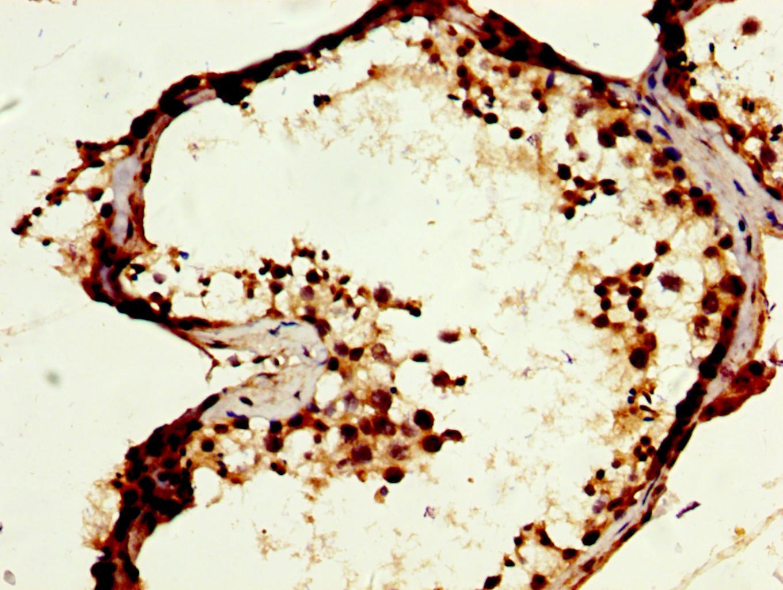 MOS Antibody in Immunohistochemistry (Paraffin) (IHC (P))