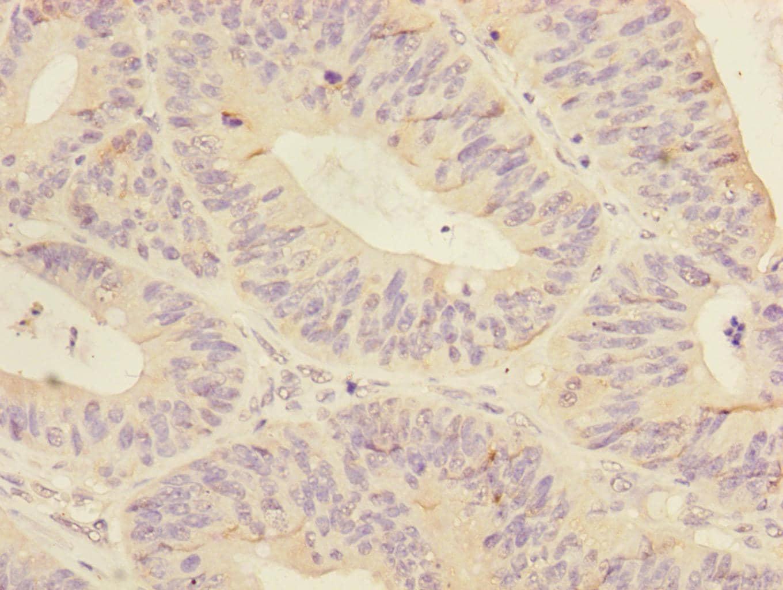 MTHFD2 Antibody in Immunohistochemistry (Paraffin) (IHC (P))
