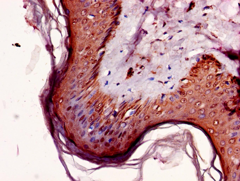 NR2C2AP Antibody in Immunohistochemistry (Paraffin) (IHC (P))