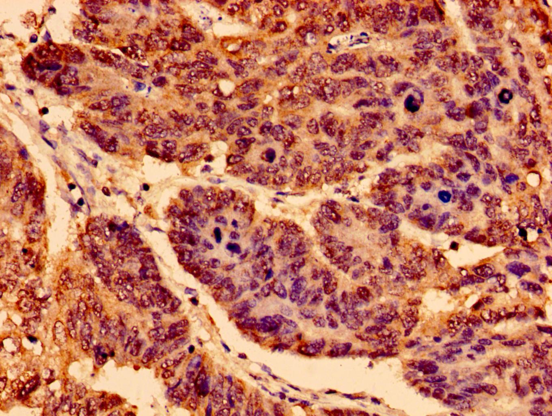 TrkA Antibody in Immunohistochemistry (Paraffin) (IHC (P))