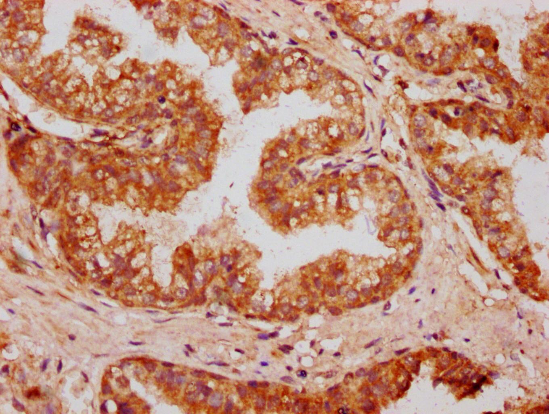 OMD Antibody in Immunohistochemistry (Paraffin) (IHC (P))
