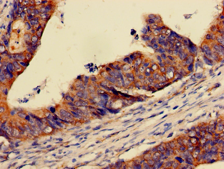 PER3 Antibody in Immunohistochemistry (Paraffin) (IHC (P))