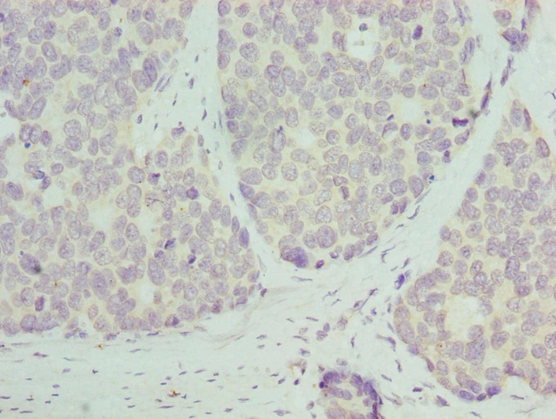 RPL9 Antibody in Immunohistochemistry (Paraffin) (IHC (P))