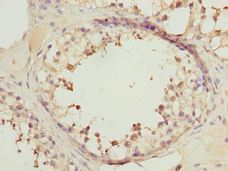 RRAS2 Antibody in Immunohistochemistry (Paraffin) (IHC (P))