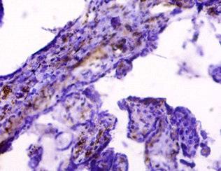 HLA-G Antibody in Immunohistochemistry (Paraffin) (IHC (P))