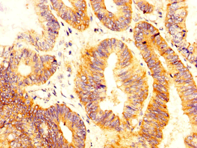NKCC1 Antibody in Immunohistochemistry (Paraffin) (IHC (P))