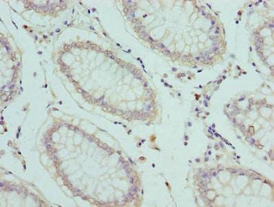 SLC1A6 Antibody in Immunohistochemistry (Paraffin) (IHC (P))