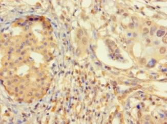 ZNF2 Antibody in Immunohistochemistry (Paraffin) (IHC (P))