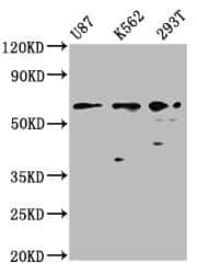 ZNF37A Antibody in Western Blot (WB)