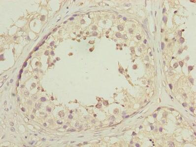 HSP40 Antibody in Immunohistochemistry (Paraffin) (IHC (P))