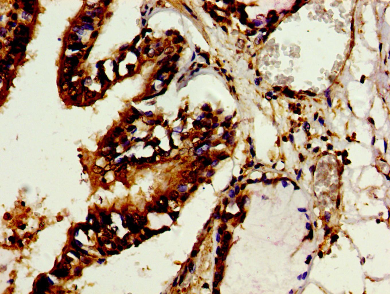 TROVE2 Antibody in Immunohistochemistry (Paraffin) (IHC (P))