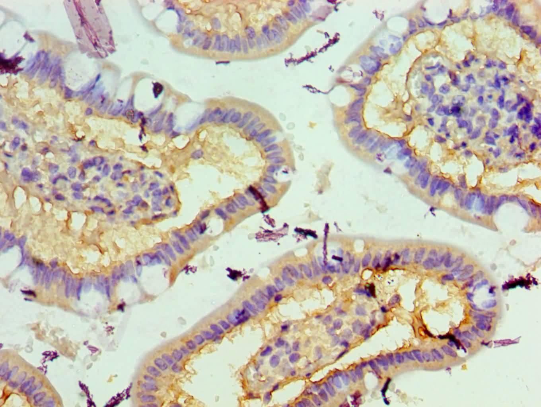 MST2 Antibody in Immunohistochemistry (Paraffin) (IHC (P))