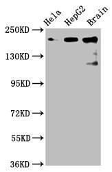 CKAP5 Antibody in Western Blot (WB)
