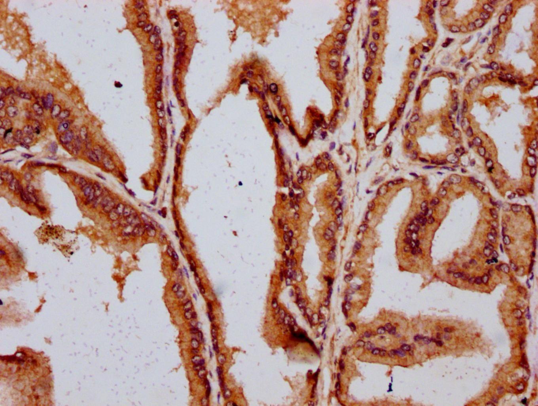 DAZAP2 Antibody in Immunohistochemistry (Paraffin) (IHC (P))