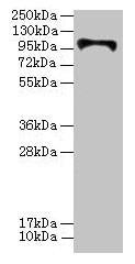 HKDC1 Antibody in Western Blot (WB)