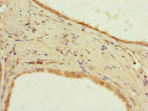 PPP2R2D Antibody in Immunohistochemistry (Paraffin) (IHC (P))