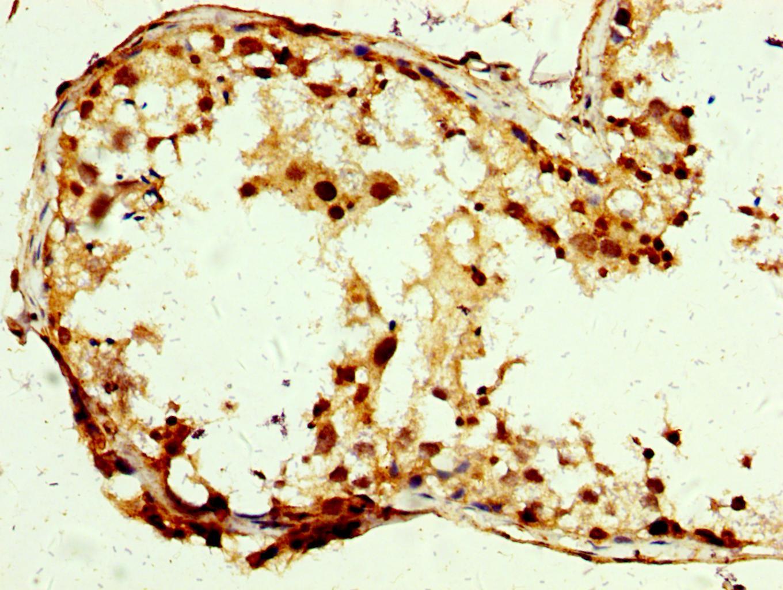 SLC25A24 Antibody in Immunohistochemistry (Paraffin) (IHC (P))