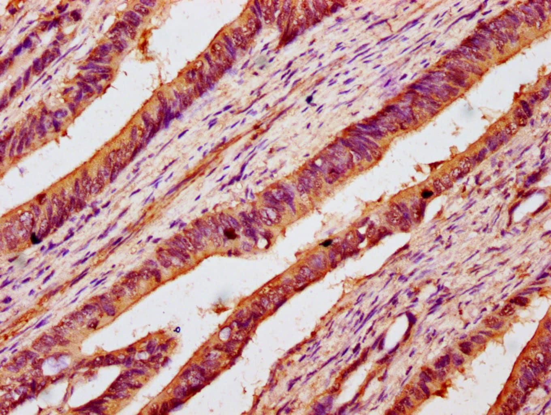 B3GNT6 Antibody in Immunohistochemistry (Paraffin) (IHC (P))