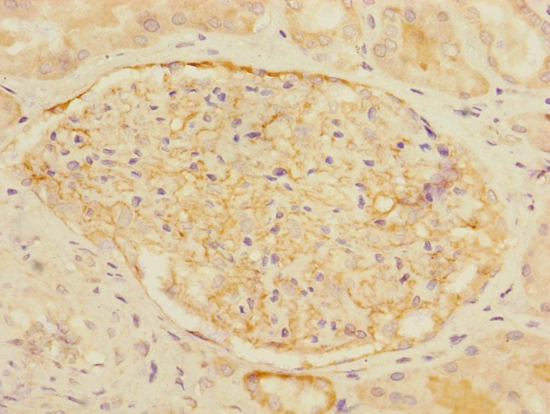 CD35 Antibody in Immunohistochemistry (Paraffin) (IHC (P))