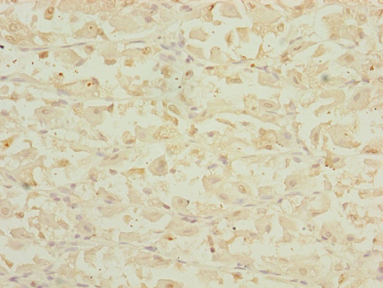 DHTKD1 Antibody in Immunohistochemistry (Paraffin) (IHC (P))