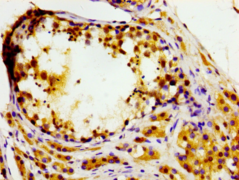 MASTL Antibody in Immunohistochemistry (Paraffin) (IHC (P))