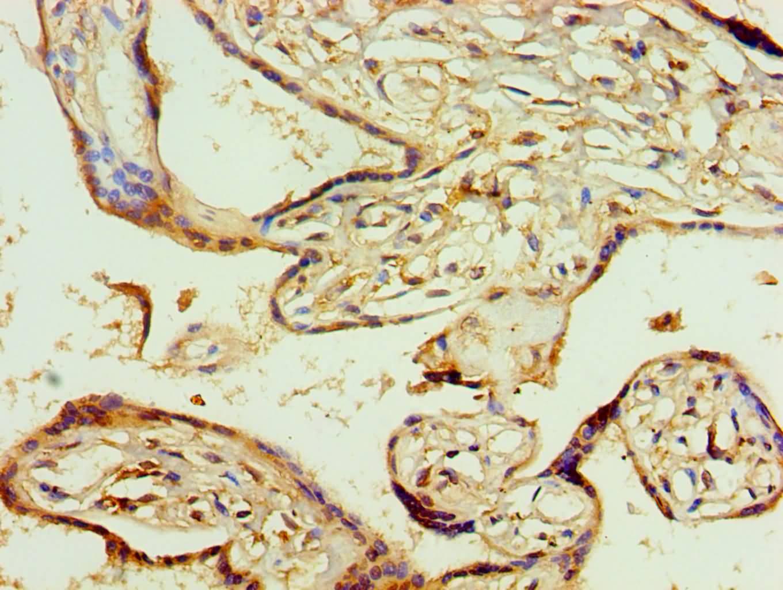 AGPAT1 Antibody in Immunohistochemistry (Paraffin) (IHC (P))