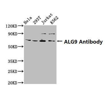 ALG9 Antibody in Western Blot (WB)