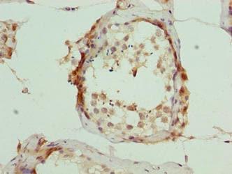 C6orf211 Antibody in Immunohistochemistry (Paraffin) (IHC (P))