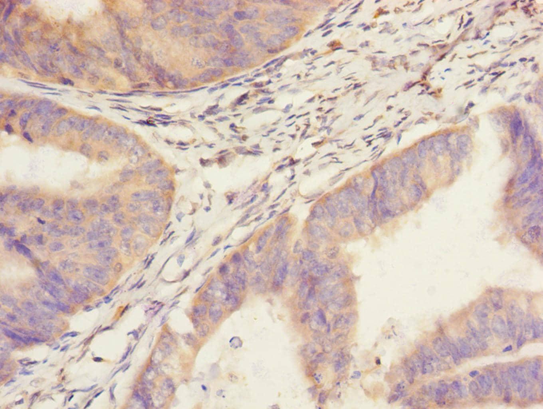 SAV1 Antibody in Immunohistochemistry (Paraffin) (IHC (P))