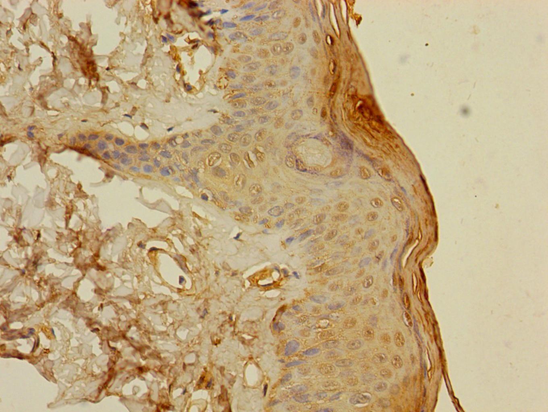 S100A14 Antibody in Immunohistochemistry (Paraffin) (IHC (P))