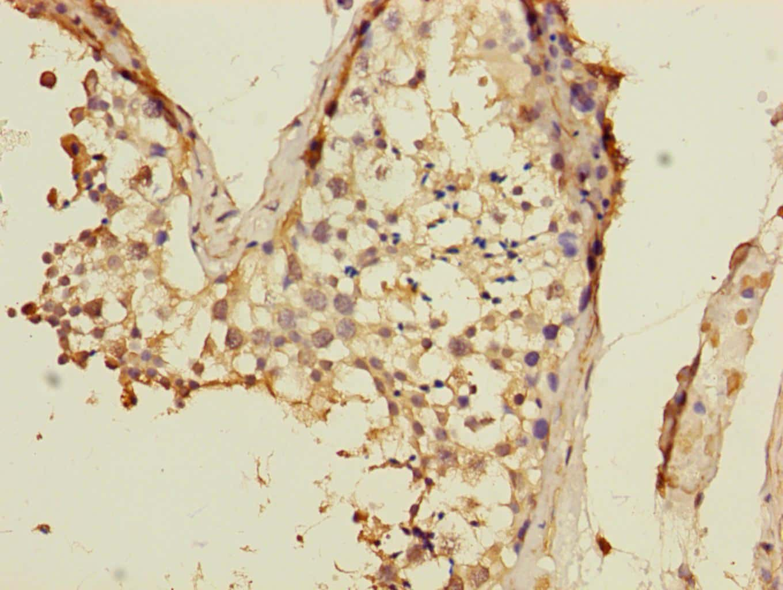 VPS33B Antibody in Immunohistochemistry (Paraffin) (IHC (P))
