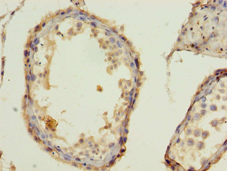 BarX1 Antibody in Immunohistochemistry (Paraffin) (IHC (P))