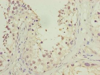 HOOK1 Antibody in Immunohistochemistry (Paraffin) (IHC (P))