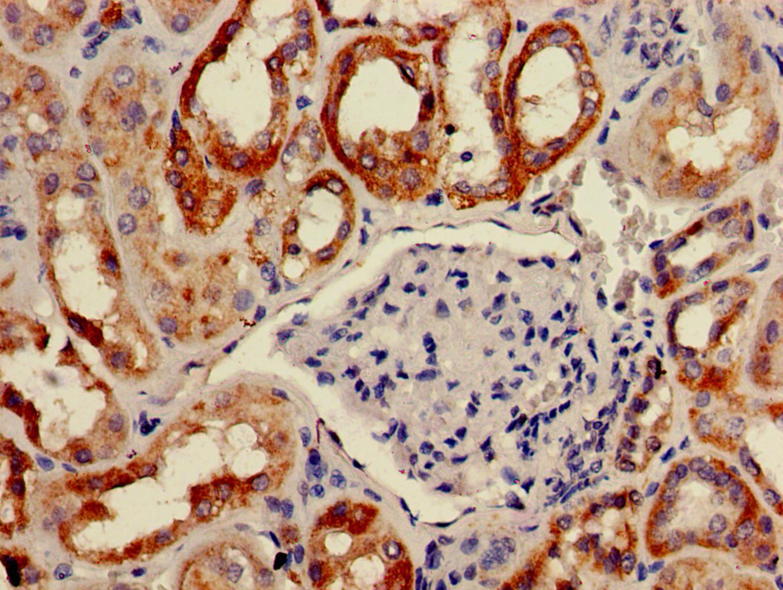 BAIAP2 Antibody in Immunohistochemistry (Paraffin) (IHC (P))