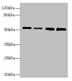 STK38L Antibody in Western Blot (WB)