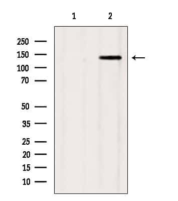 GAK Antibody in Western Blot (WB)