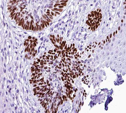 AP2 alpha Antibody in Immunohistochemistry (Paraffin) (IHC (P))