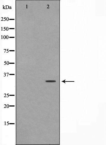 FOXE1 Antibody in Western Blot (WB)