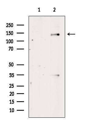 Phospho-c-Abl (Tyr412) Antibody in Western Blot (WB)