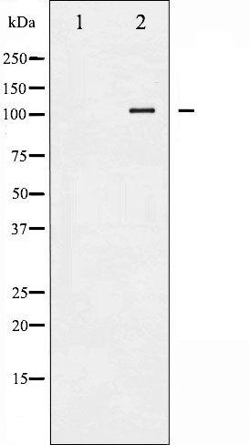 Phospho-HSL (Ser552) Antibody in Western Blot (WB)