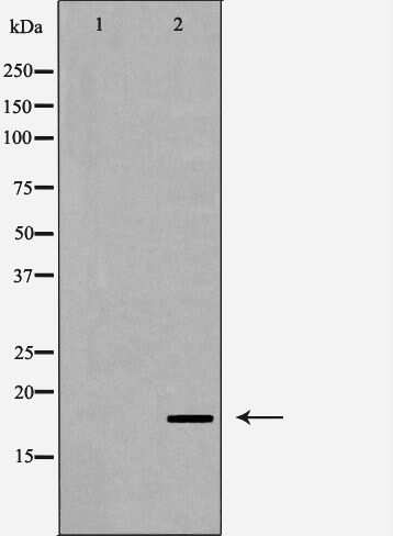 Caspase 6 (Cleaved Asp179) Antibody in Western Blot (WB)