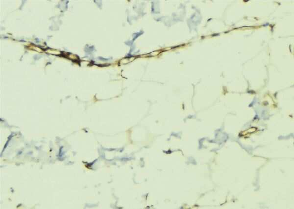 Phospho-Dematin (Ser403) Antibody in Immunohistochemistry (Paraffin) (IHC (P))