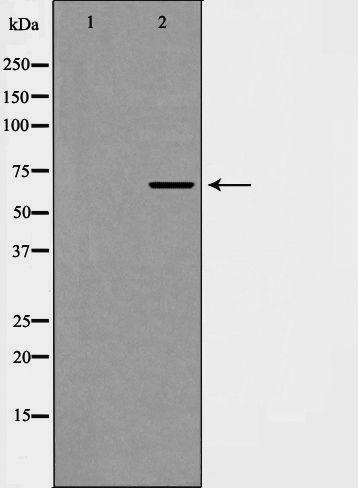 Phospho-EIF4B (Ser422) Antibody in Western Blot (WB)