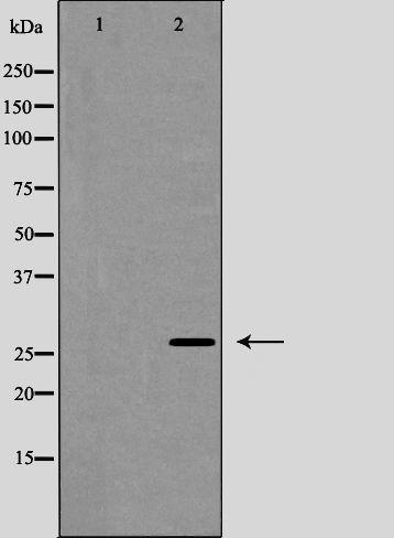 Phospho-Caveolin 2 (Tyr27) Antibody in Western Blot (WB)