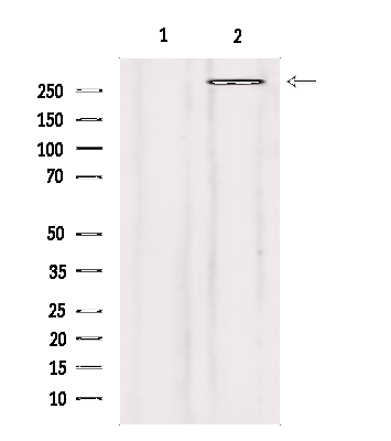 Filamin A Antibody in Western Blot (WB)